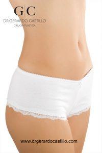 abdominoplastia en monterrey