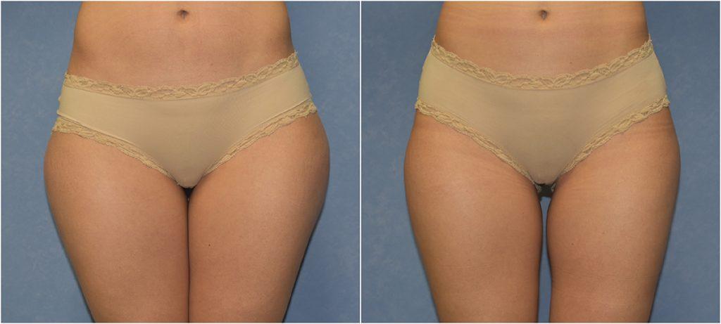Liposucción de caderas